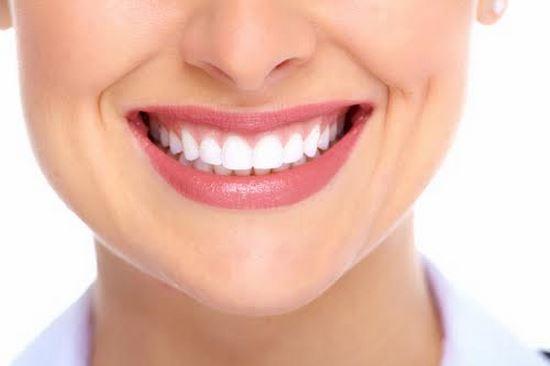 Sorriso perfeito: como manter seus dentes sempre lindos