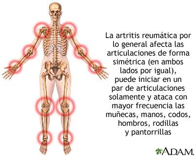 sintomas de reumatismo en los brazos