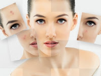 Bahan Alami Untuk Kulit Cerah Dan Bebas Hiperpigmentasi