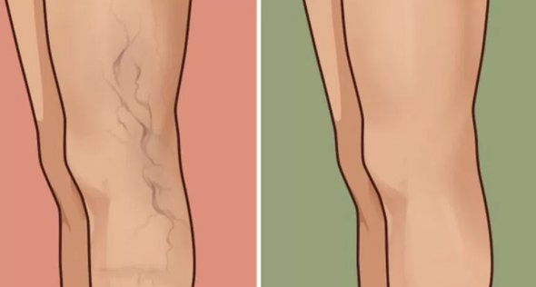 Varicose Veins Without Surgery