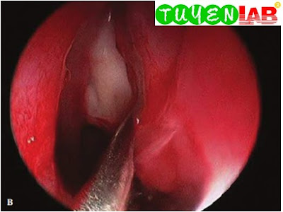 Same patient, endoscopic view after rupture