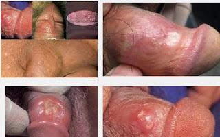 Obat Sipilis Di Apotik K24