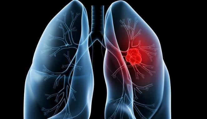 Obat Herbal Kanker Paru-Paru yang Ampuh, Efektif dan Aman