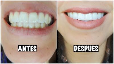 3 Métodos Caseros Super EFECTIVOS para BLANQUEAR los dientes en 1 SEMANA