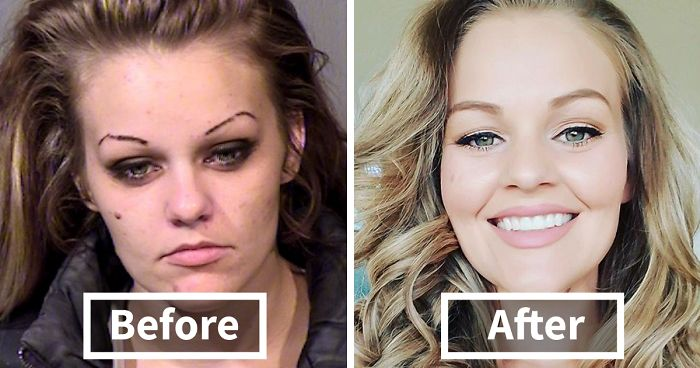 Powerful Before/After Photos Of Women Who QUIT Drugs.