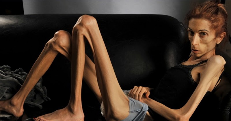 an analysis of anorexia nervosa Anorexia may or may not be characterized by an abnormal drop in body weight patients with anorexia nervosa, on the other hand, suffer from a fatally low body weight.