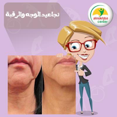 علاج تجاعيد الوجه والرقبة