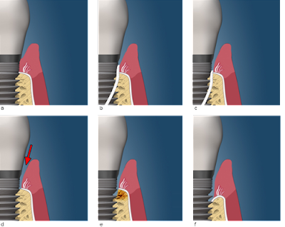 rang-implant-kem-chat-luong