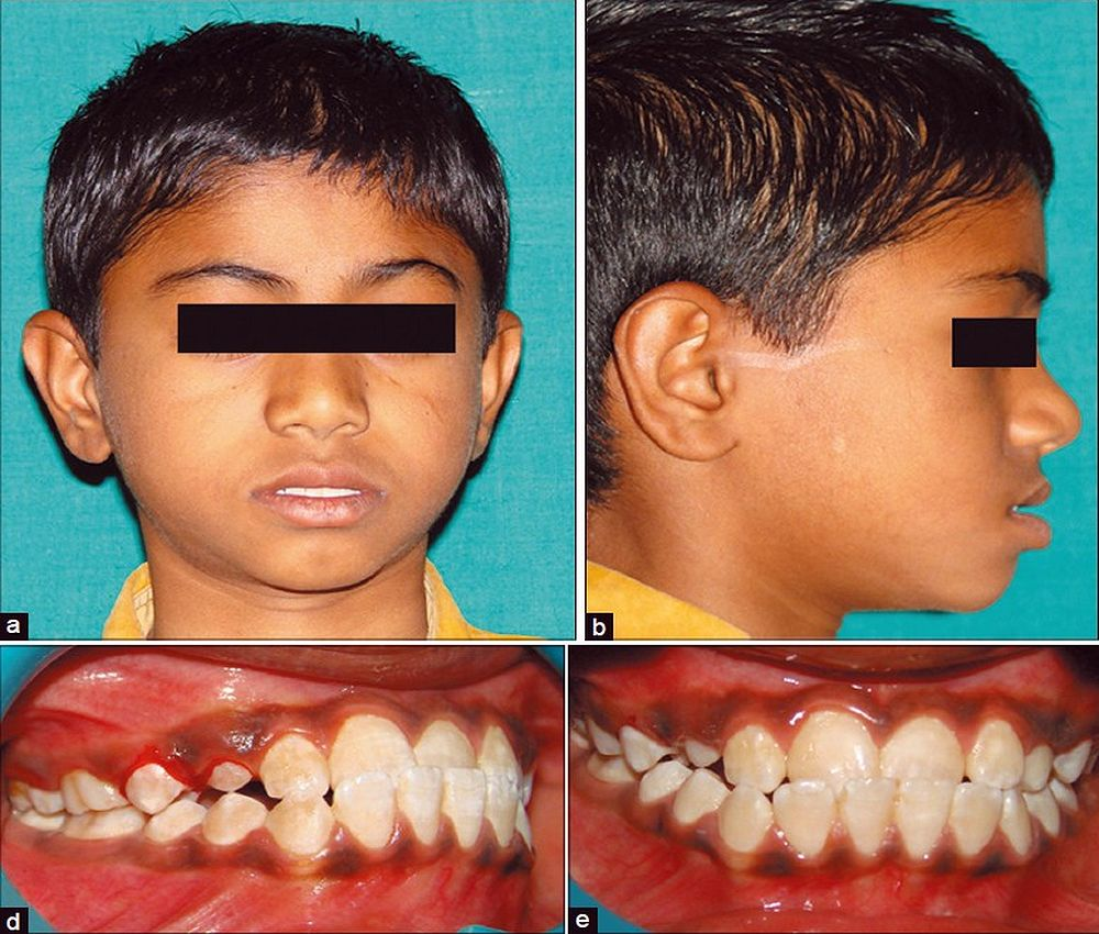 claseIII-odontopediatria