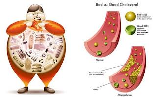 Cara-Cepat-Menurunkan-Kolesterol-Secara-Alami-Tanpa-Obat