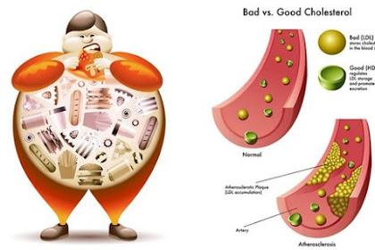 Cara Cepat Menurunkan Kolesterol Secara Alami Tanpa Obat