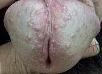 Cara Pengobatan Penyakit Sipilis Pada Pria