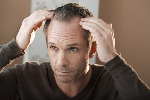 تساقط الشعر بعد الاربعين