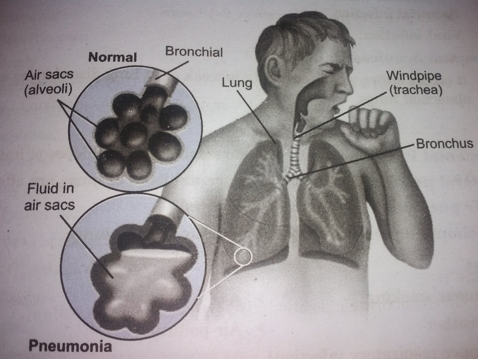 Medical overview: pneumonia