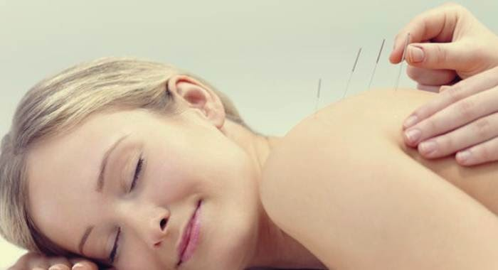 terapi akupuntur