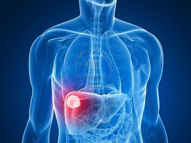 Gejala dan Penyebab Penyakit Liver