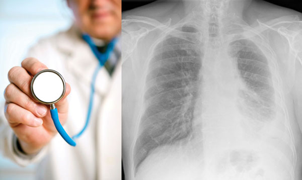 Mesothelioma and Asbestos Lawyers