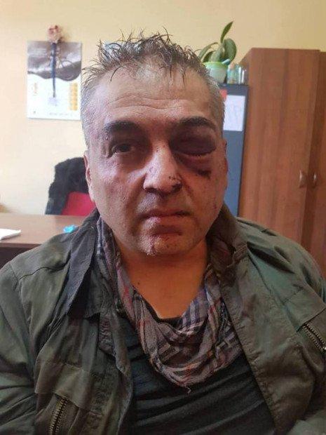 Полковник поліції пограбував банк - є вбиті та поранені