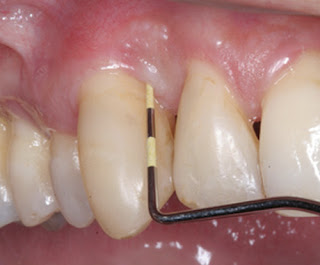 A periodontal probe is used to check and measure pocket depths picture
