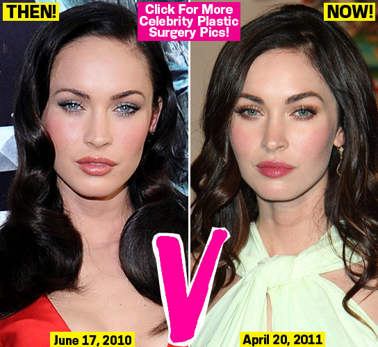Funny Picture Celebrity Megan Fox Eye Plastic Surgery