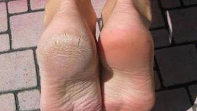 prévenir et traiter les fissures dans les pieds