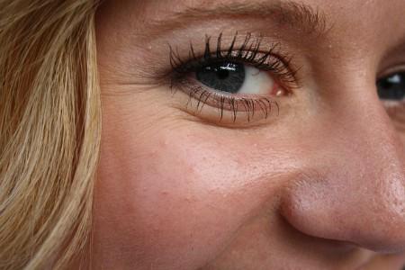 Ácido hialurónico - Arrugas