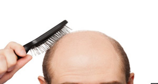 Recipe for baldness: Hair begins to grow after two days! (RECIPE)