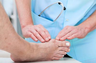 Pengobatan Tradisional Penyakit Asam Urat