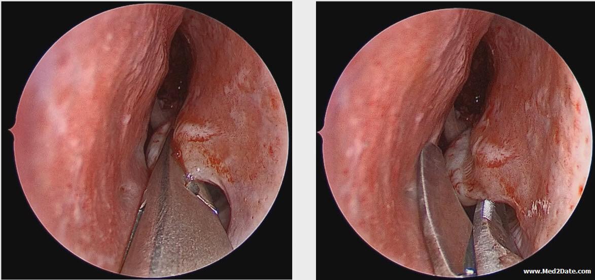 inverted-papilloma