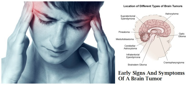 Early Symptoms of Brain Cancer
