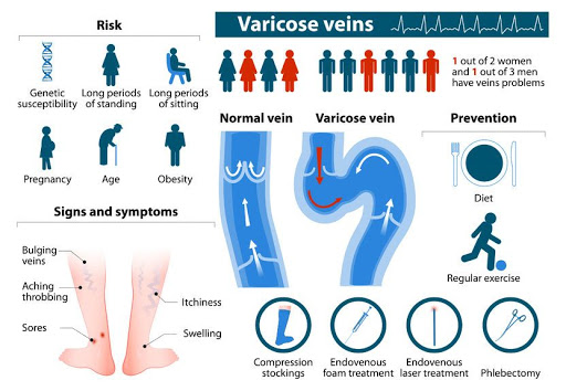 Venous-disease-infographic-nerdyrockson