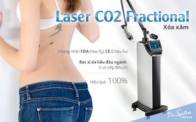 xoa hinh xam bang laser
