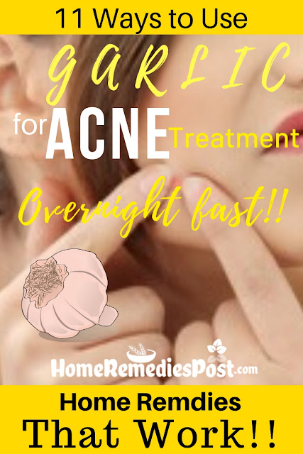 Garlic For Acne, Garlic Acne, Is Garlic Good For Acne, How To Use Garlic For Acne, Garlic And Acne, How To Get Rid Of Acne, How To Get Rid Of Acne Fast, Home Remedies For Acne, Acne Treatment,