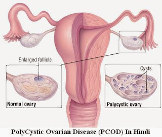 PolyCystic-Ovarian-Disease-(PCOD)-In-Hindi