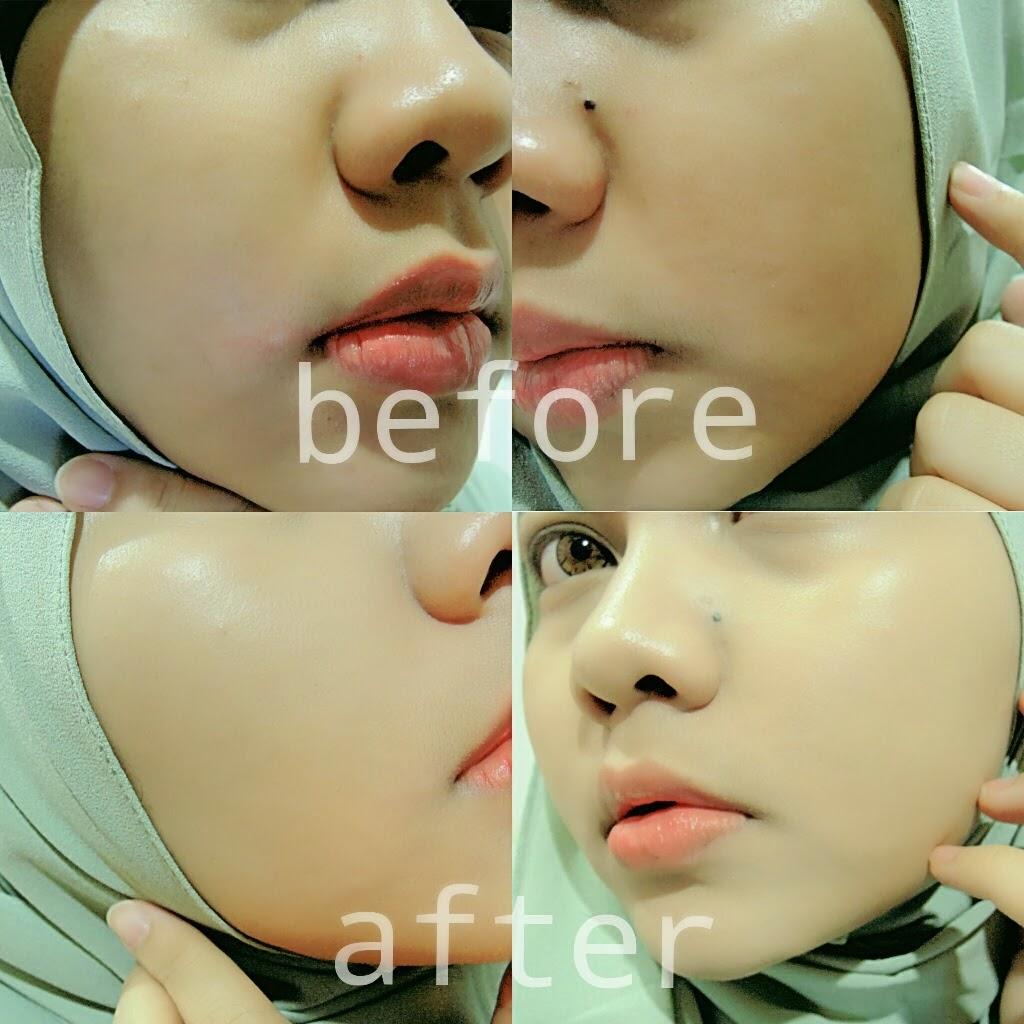 2 Cara Menghilangkan Flek Hitam Di Wajah Ada Testimoni: Kosmetik Kecantikan Yogyakarta: April 2015