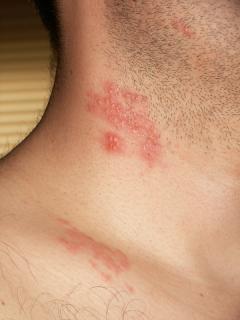 cara mengobati herpes zoster