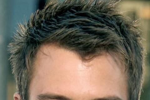 M字ハゲの悩みを軽減する髪型とは?