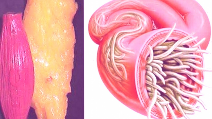 Clean Up All The Fats And Parasites In Your Body With This Powerful Recipe