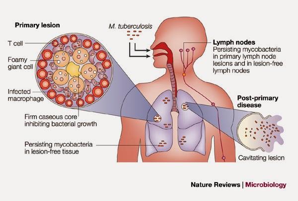 MENGENAL PENYAKIT TUBERCULOSIS (TBC) DAN CARA PENCEGAHANNYA