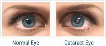 cataract-www.healthnote25.com