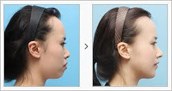 Korean Face Contouring, Short Chin Correction Surgery