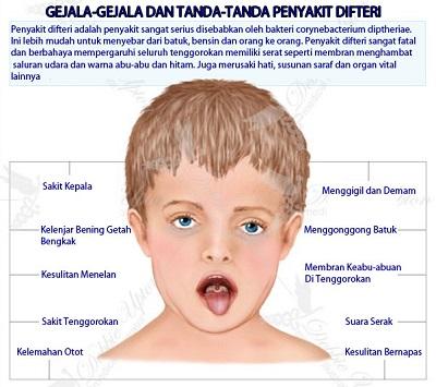 Imunisasi Efektif Cegah Difteri