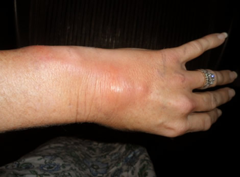 Phlebitis in hand
