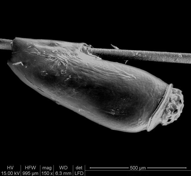 Parasitophilia: Pediculus Humanus