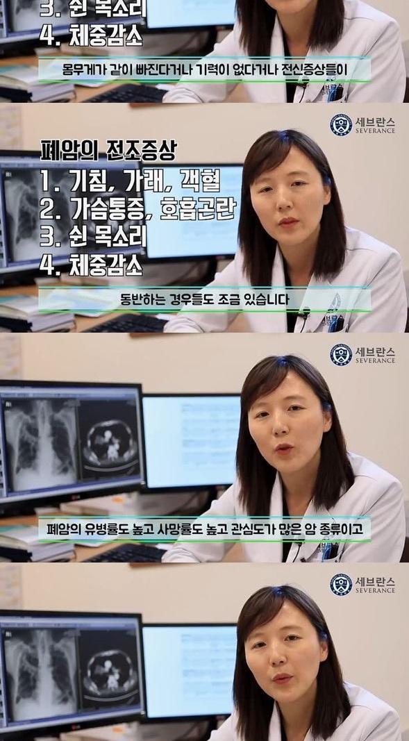 폐암 전조증상