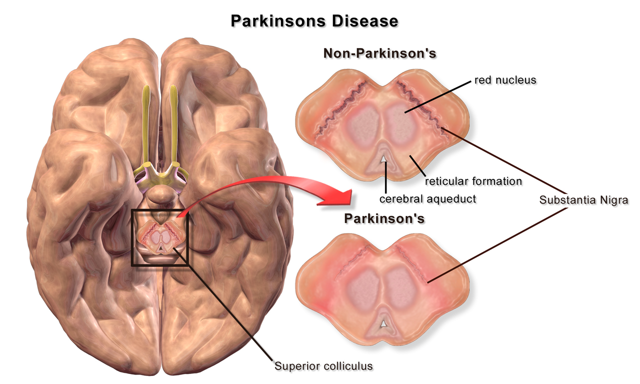 Could Parkinson's Disease Start in the Gut?