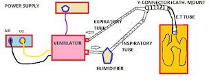 mechanical ventilator
