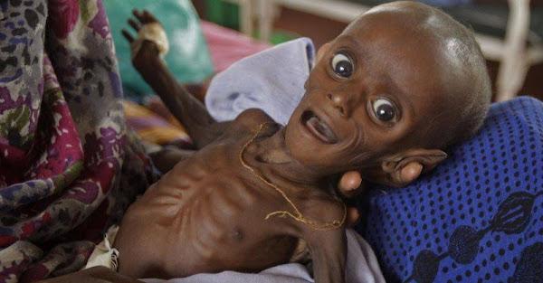 Fallece bebé de 6 meses en Aragua por desnutrición