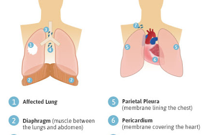 Cytoreductive Surgery, Take Visible Peritoneal Tumors From Inside The Abdominal Cavity