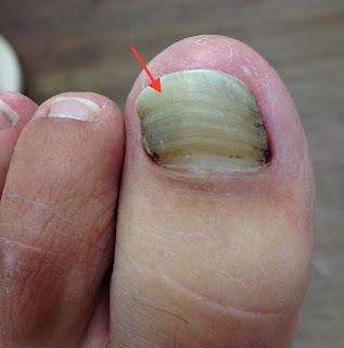Fußnägel-richtig-schneiden